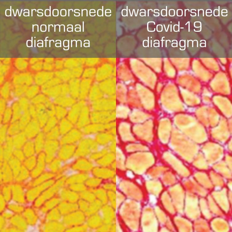 Covid en Non Covid diafragma